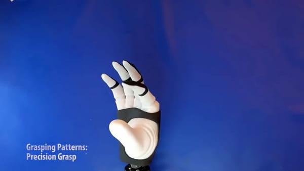 Mano 'bionica' impiantata sull'uomo: ecco come funziona - IL VIDEO