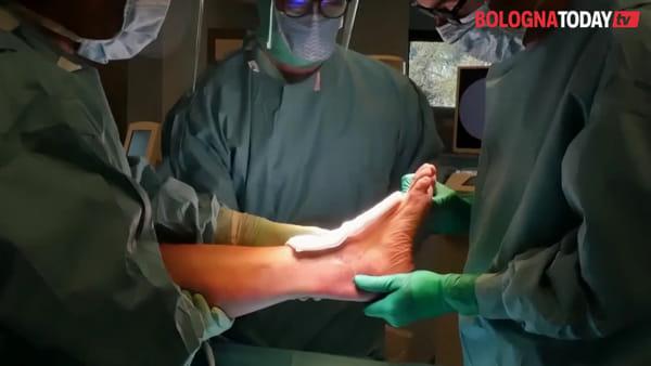 Al Rizzoli ricostruita caviglia in 3D su misura: prima volta al mondo | VIDEO